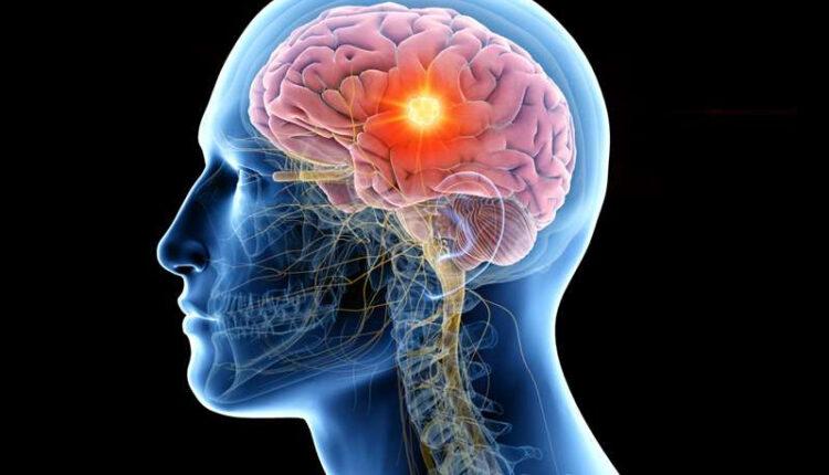 Beyin aktivitelerinin okunması